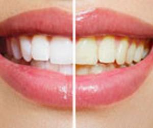 blanqueamiento en hernadez dental