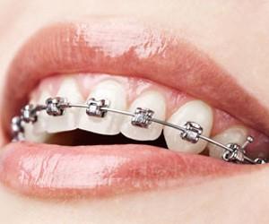 ortodoncia en hernandez dental