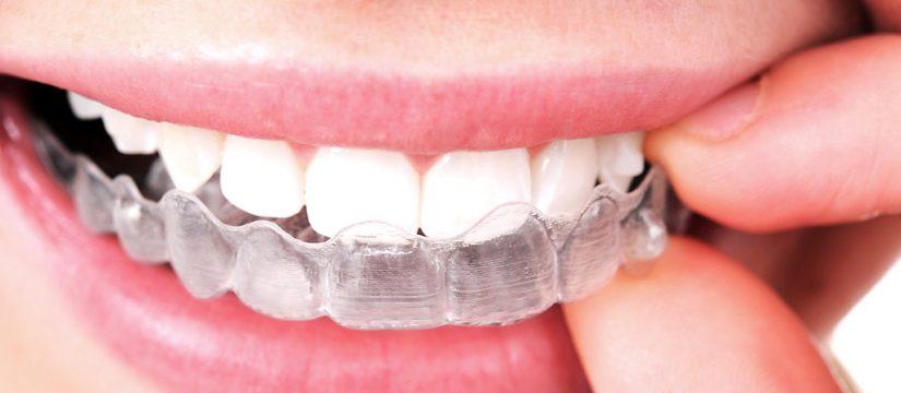 invisalign hernandez dental