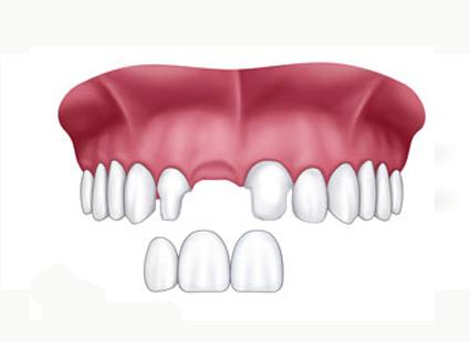 protesis metal porcelana hernandez dental