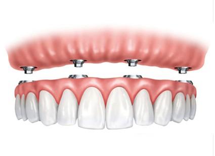 sobredentadura hernandez dental