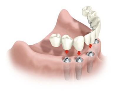 hibrida hernandez dental