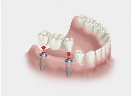 puente sobre implantes hernandez dental