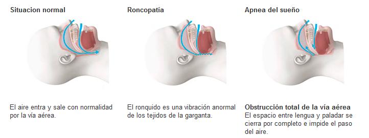 apnea tratamiento