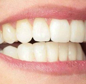 contorneado en hernandez dental