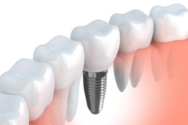 implante - Implantes dentales en La Bañeza, León.
