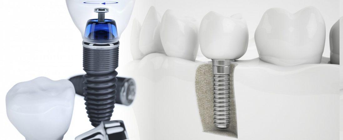 implantebanner 1097x450 - Implantes dentales en La Bañeza, León.