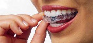 invisalign,ortodoncia invisible