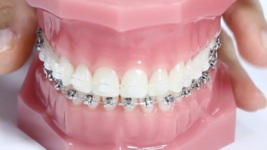 ortodoncia-mhm-baneza1