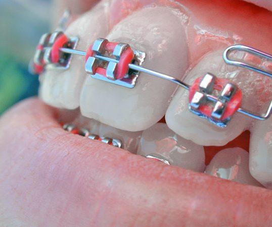 ortodoncia-mhm-leon