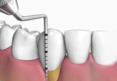 periodoncia hernandez dental