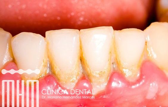 la placa dental sus causas y como eliminarla