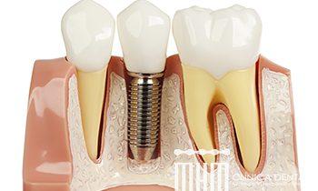 impantes dentales en León, la bañeza