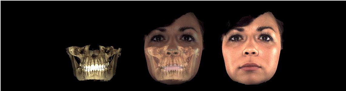 face3d - Escaner radiográfico