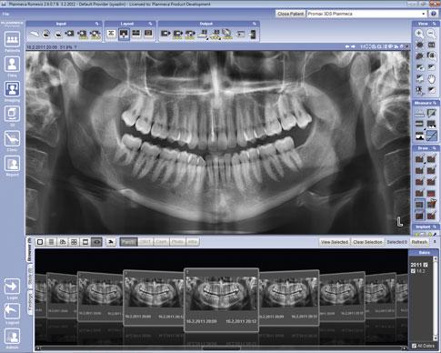 smartpan 1 - Escaner radiográfico