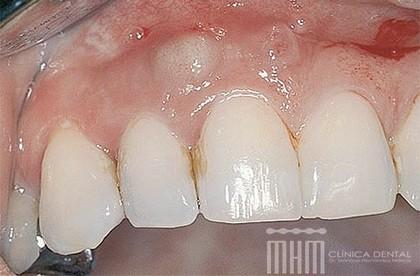 El Absceso Dental Es Una Pequena Bolsa De Pus Que Crece