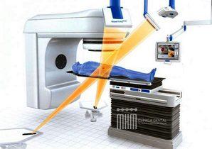radioterapia y salud dental