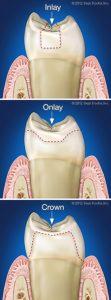 clinica dental dr. mariano hernández la bañeza.inlay onlay corona 111x300 - Incrustaciones dentales: inlays, onlays, overlays y adhesión dental.