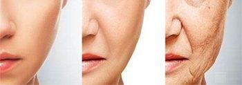 Envejecimiento facial.