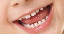 clinica dental Dr. mariano hernandez marcos boca saludable pequeños