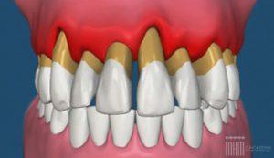 clinica dental mariano hernandez marcos enfermedad periodontal y perdida de visión 300x173 - Enfermedad periodontal y pérdida de visión