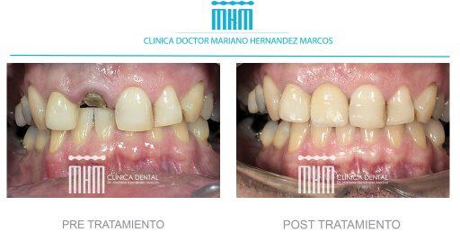 implante dental de un diente roto dentistas la bañeza